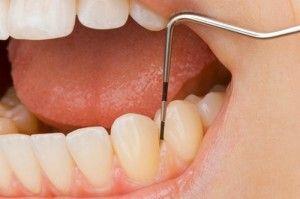 Вагітність і зубний біль - обезбаливание: мазі і препарати, лікування у стоматолога
